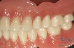 دندانسازی ارزان در تهرانسر